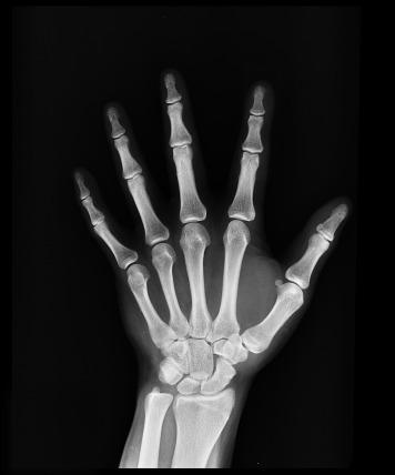 x-ray-1704855_1280